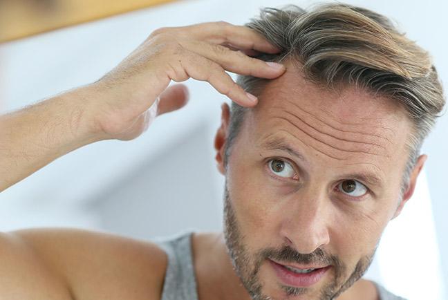 Transplantace vlasů v Turecku kolik stojí