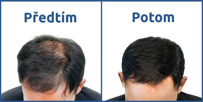 Transplantace vlasů v Turecku výsledek