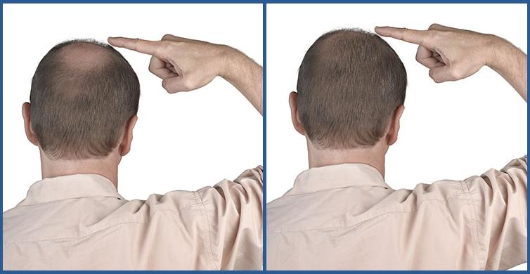 Turecko transplantace vlasů výsledek