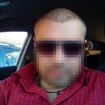 Transplantace vlasů v Turecku a zkušenosti našeho klienta Františka