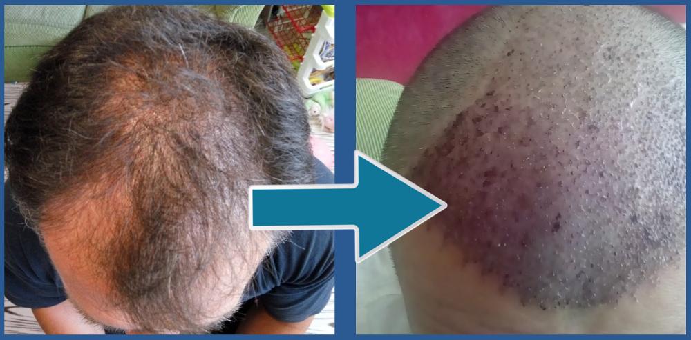 transplantace vlasů zkušnosti přetím potom