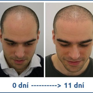 Bez diskuze nejlepší transplantace vlasů v Turecku