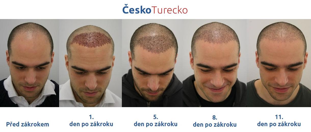 transplantace vlasů v Turecku výsledek diskuze