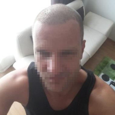 Hodnocení a reference transplantace vlasů v Turecku přes ČeskoTurecko