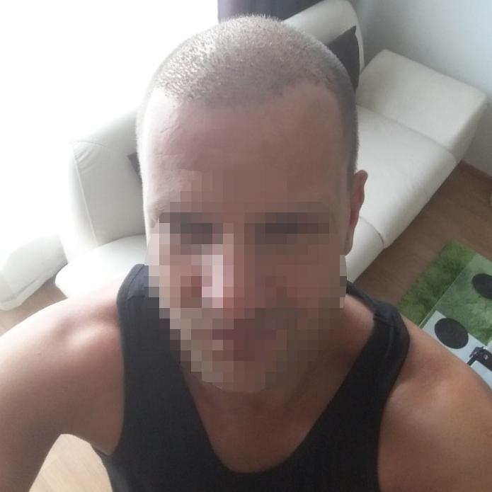reference transplantace vlasů ČeskoTurecko