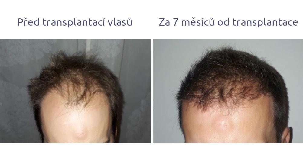 Osobní zkušenost transplantace vlasů výsledek