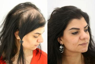 Je transplantace vlasů pro ženy jediným řešením na vypadávání vlasů?