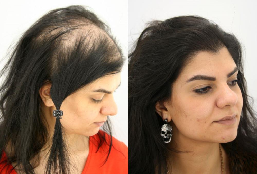transplantace vlasů pro ženy turecko istanbul