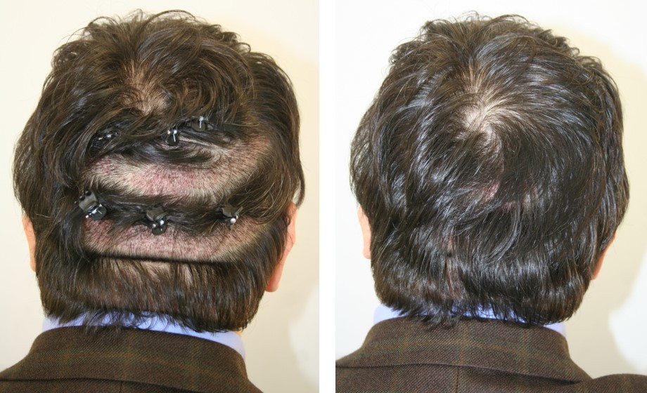 transplantace vlasů u žen bez stříhání vlasů turecko istanbul
