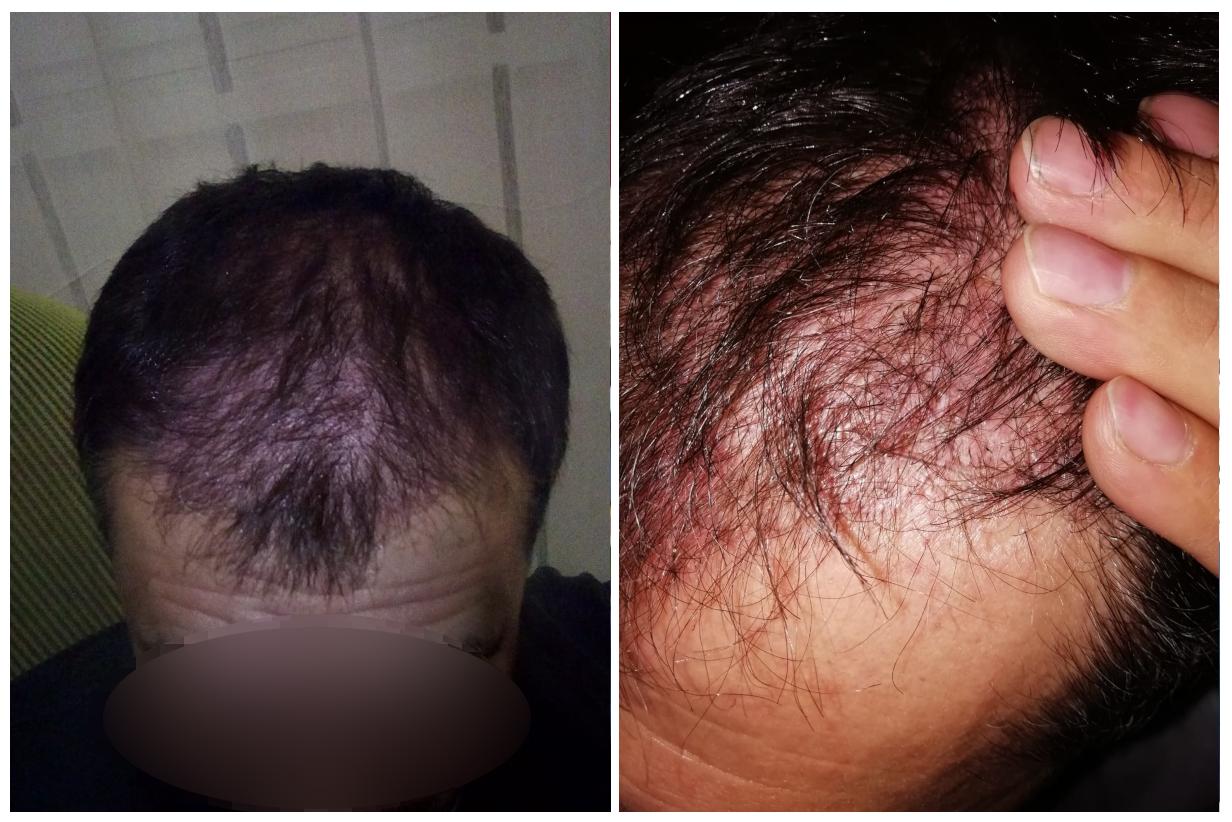 Růst vlasů po cca 3 měsících od transplantace vlasů