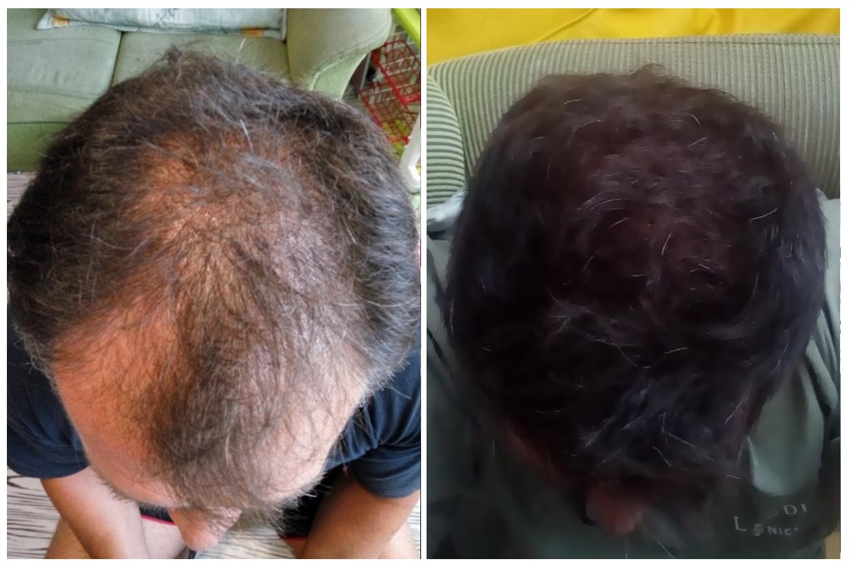 Transplantace vlasů v Turecku: Předtím a potom (cca po 8 měsících od transplantace)
