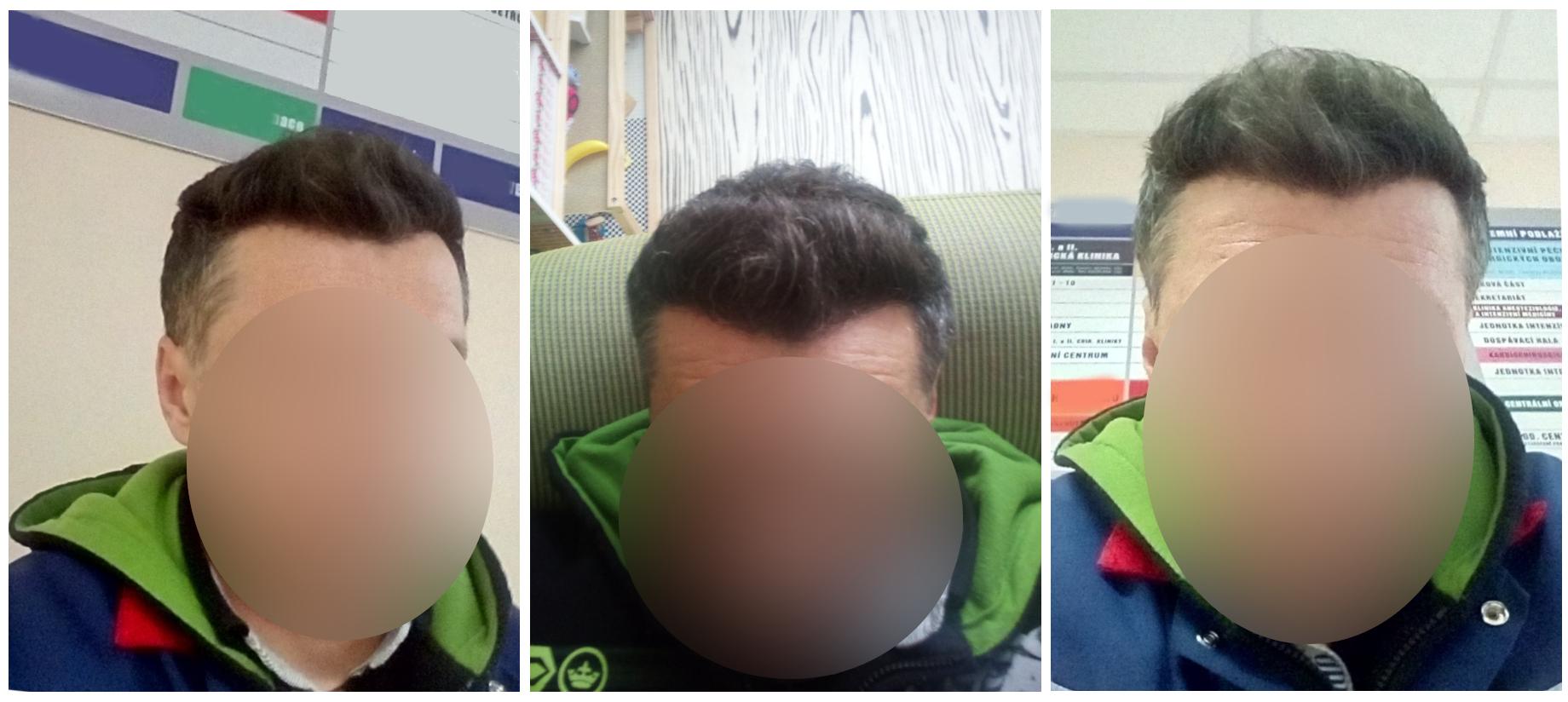 Výsledek transplantace vlasů