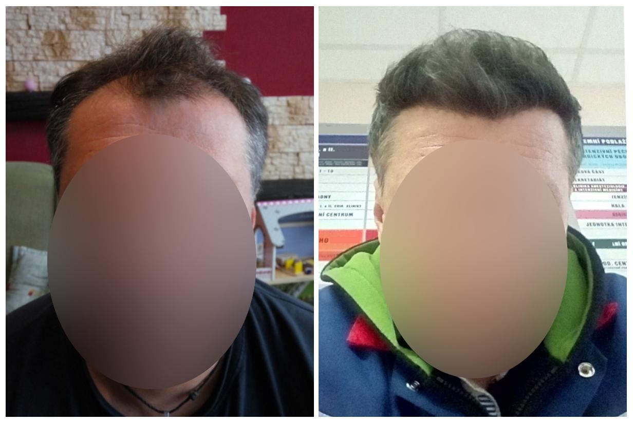Výsledek transplantace vlasů Turecko předtím a potom