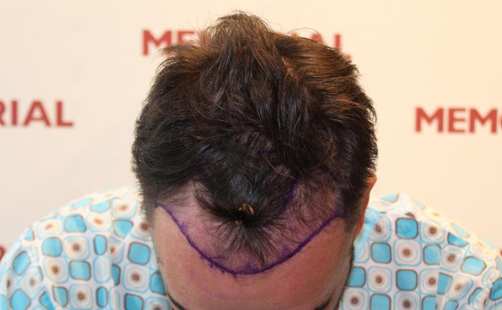 Transplantace vlasů v Česku vyjde na 220 000 Kč, v Turecku stojí necelých 48 000 Kč