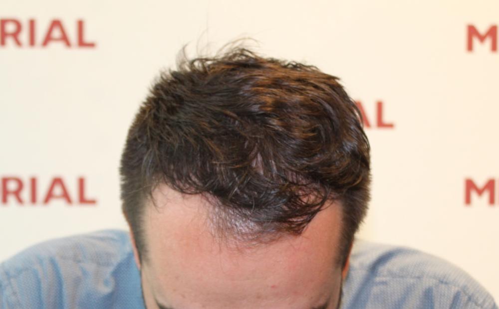 Před transplantací vlasů
