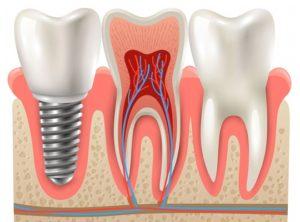 zubní implantáty zuby náhradní