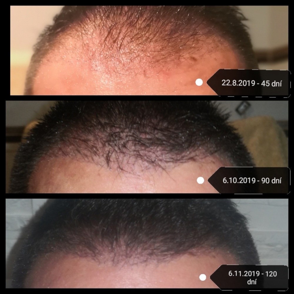 Jak rostou vlasy po transplantaci vlasů v Turecku