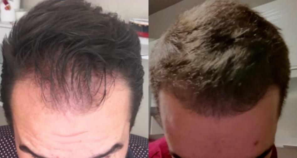 Předtím a potom - Transplantace vlasů v Turecku