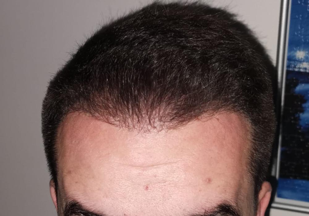 Pět měsíců po transplantaci vlasů v Turecku