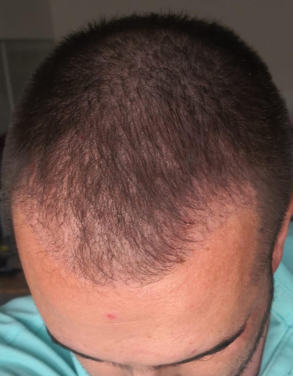První měsíc po transplantaci vlasů v Turecku