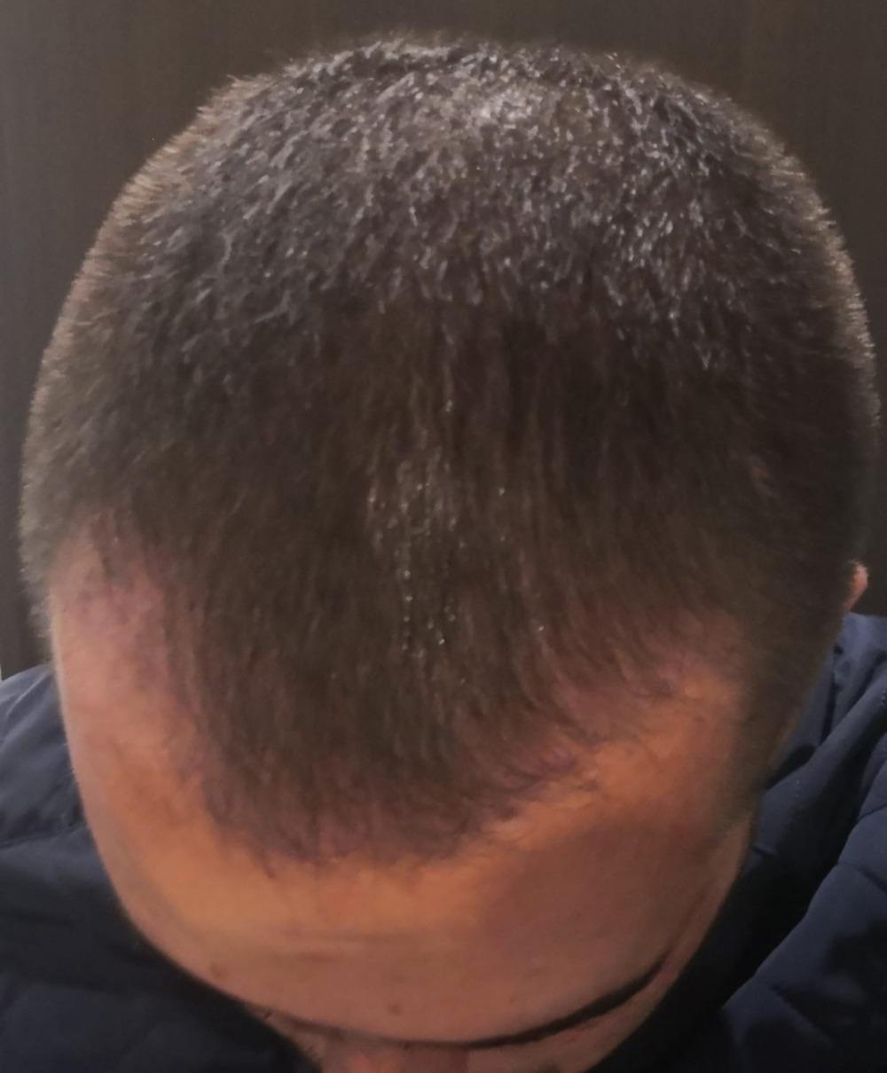 Dva měsíce po transplantaci vlasů v Istanbulu
