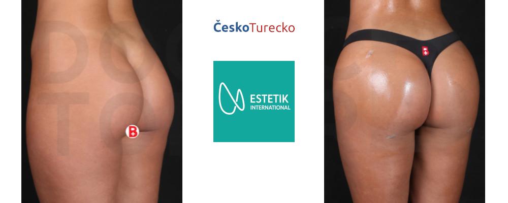 Plastická operace hýždí – Brazilian Butt Lift Turecko