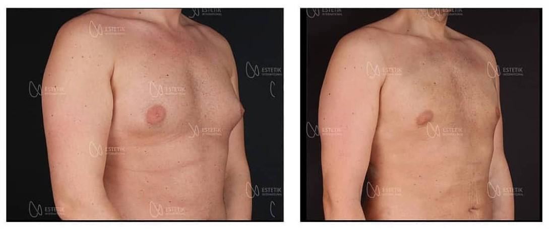 Gynekomastie - plastická operace prsou pro muže v Turecku