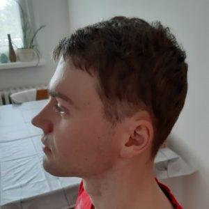 Výsledek transplantace vlasů rok od zákroku