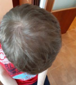 Výsledek transplantace vlasů po 1 roce