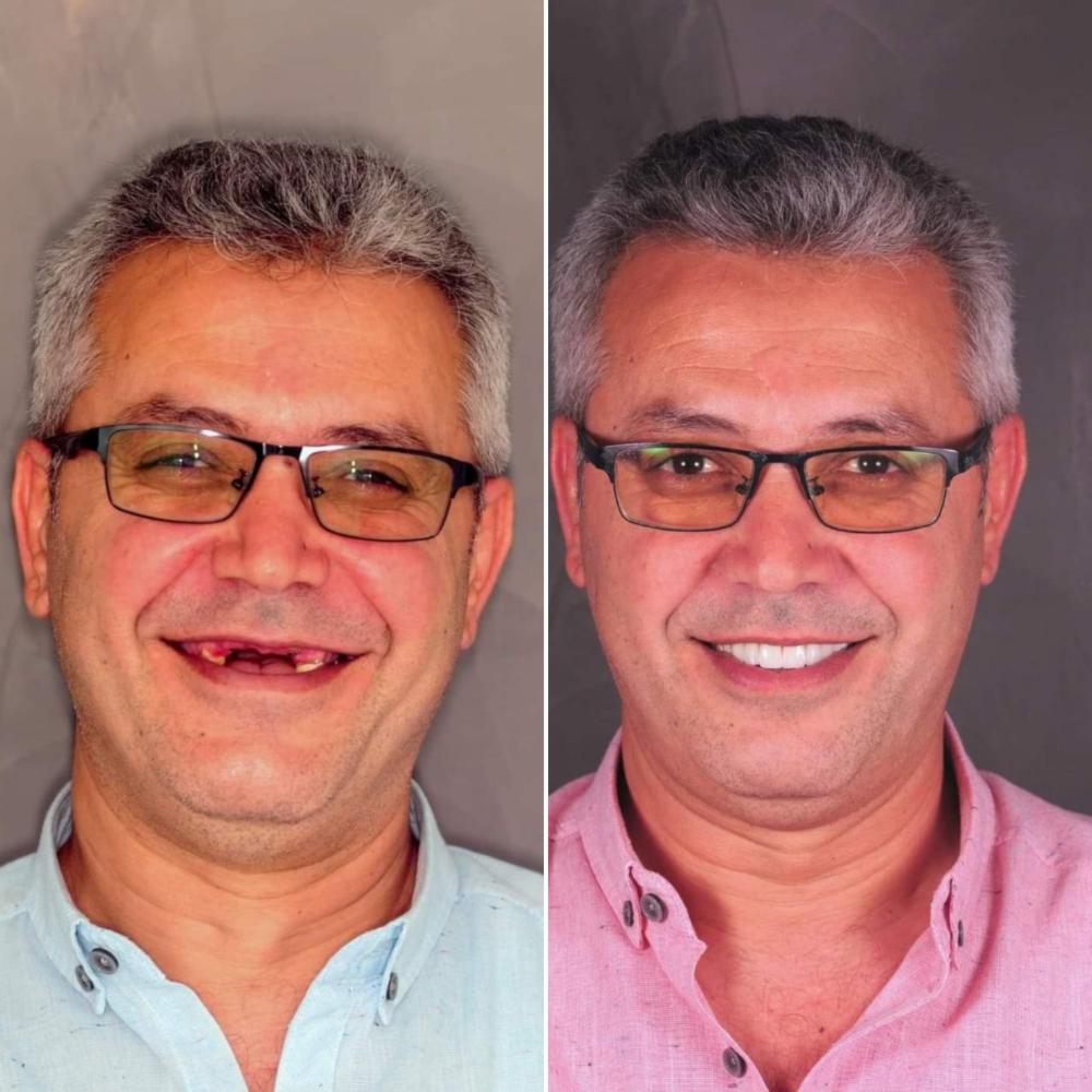 nové zuby Turecko