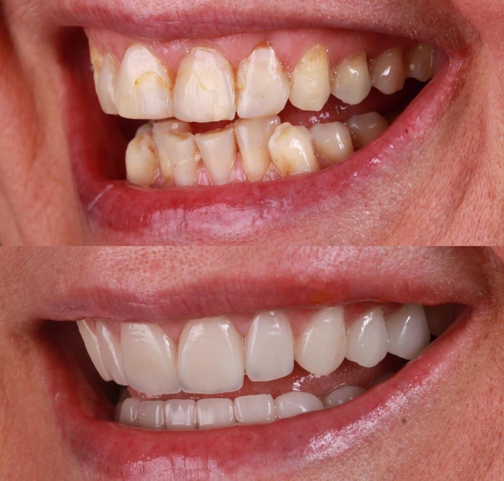 nové zuby v Turecku