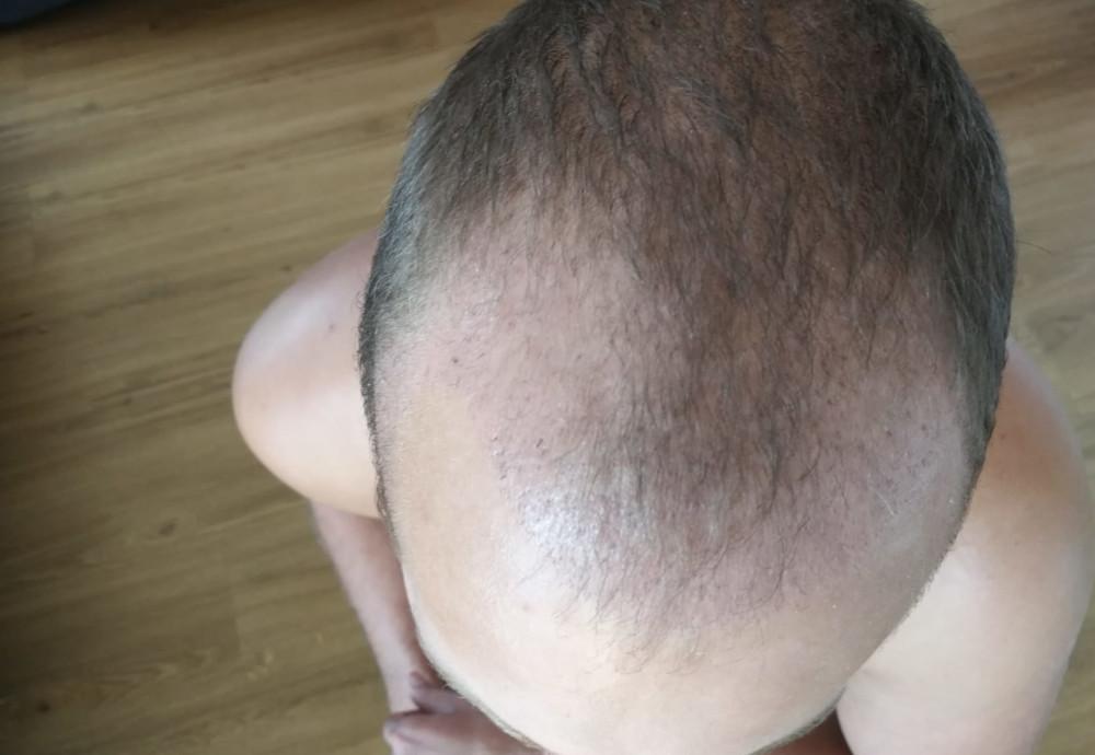 měsíc po transplantaci vlasů